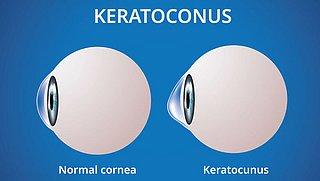 De oogziekte keratoconus komt vaker voor dan gedacht, wat moet je weten?