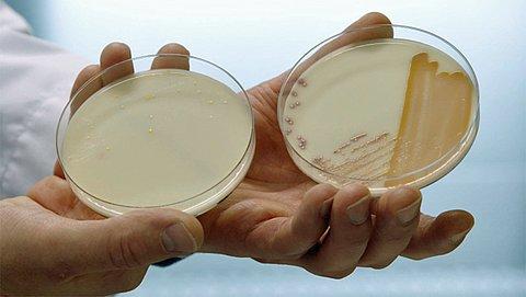 Fagentechnologie inzetten bij huidinfecties zoals eczeem