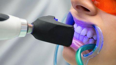 Tanden laten bleken: wat wordt er vergoed door je tandartsverzekering?