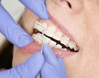 Zorgwaakhond pakt orthodontisten aan