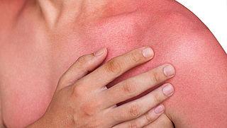 Is zonnebrand waterproof? En: krijg je vitamine D-tekort door smeren?