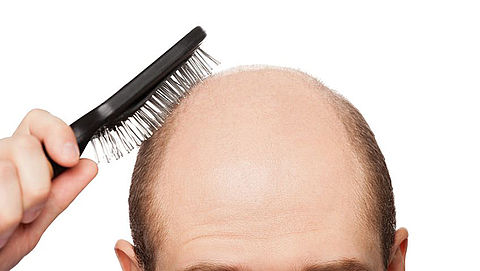RADAR+ test: Haargroeimiddelen