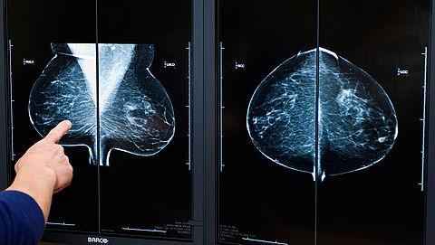 'Preventieve borstamputatie blijkt niet nodig voor BRCA2-dragers'}