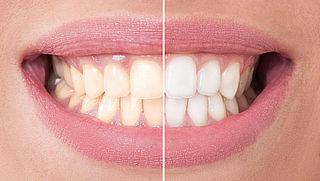 Ervaringen met tanden bleken