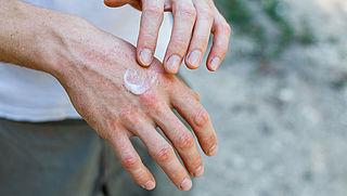 Last van handeczeem door het handen wassen? Dit kun je doen