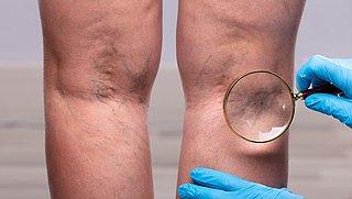 Kun je spataderen voorkomen?