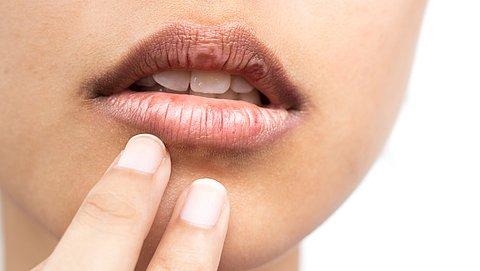 Last van droge lippen? Dit moet je weten