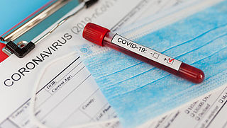 Zijn je persoonsgegevens veilig bij testlijnmedewerkers?