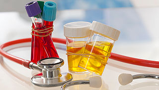 Sneller kanker ontdekken met urinetest