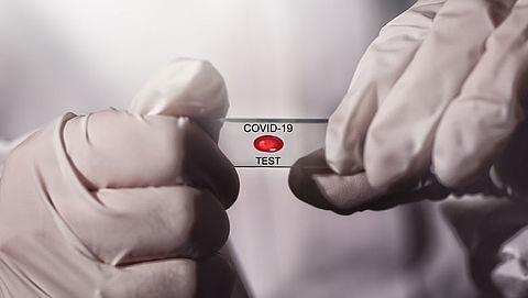 De Jonge: stel testen op corona niet uit