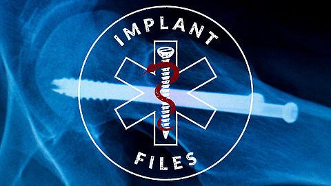 Implant Files: honderden WOB-verzoeken en weggelakte informatie}