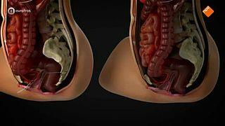 Hernia- versus bekkenbodemmatje