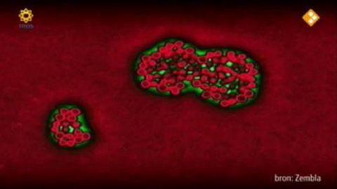 MRSA-bacterie