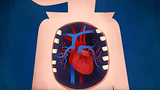 Wat gebeurt er bij slagaderverkalking?