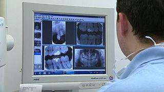 Geen vergoeding bijzondere tandheelkunde