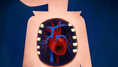 Wat gebeurt er bij een hartaanval?}