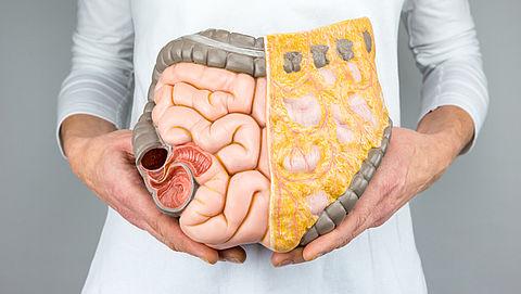 Het prikkelbaredarmsyndroom: wat is het, en wat kun je doen?}
