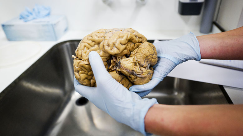 Onderzoek na overlijden toont vaak verkeerde diagnose aan