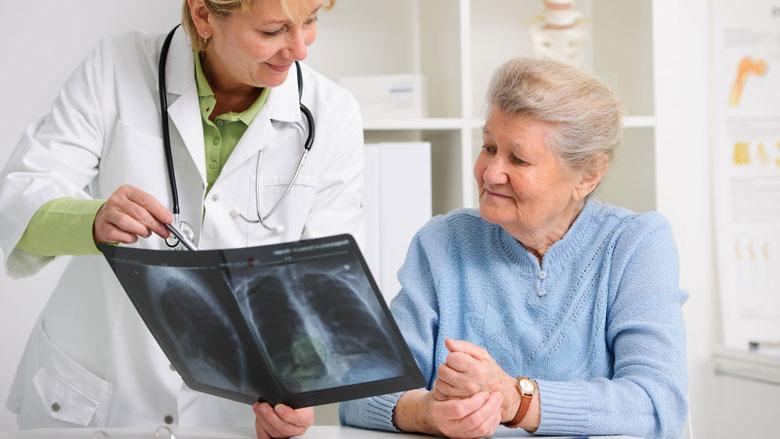 'Screening voorkomt honderden longkankerdoden per jaar'