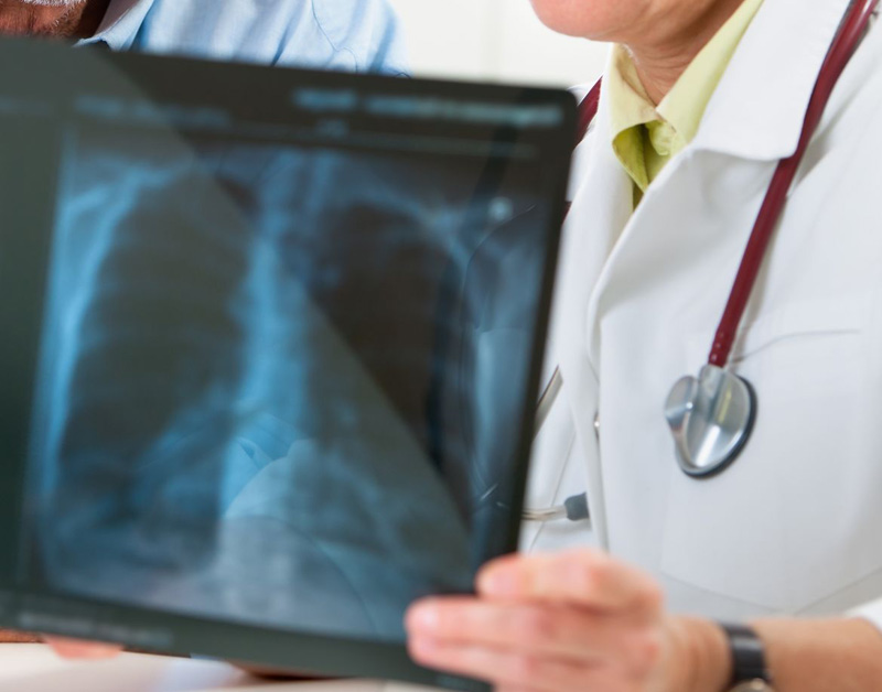 'Longkankermiddel nivolumab niet in basispakket'