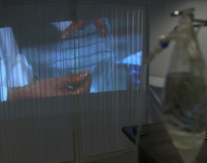 Implantaten voor bekkenbodem zonder onderzoek op markt gebracht