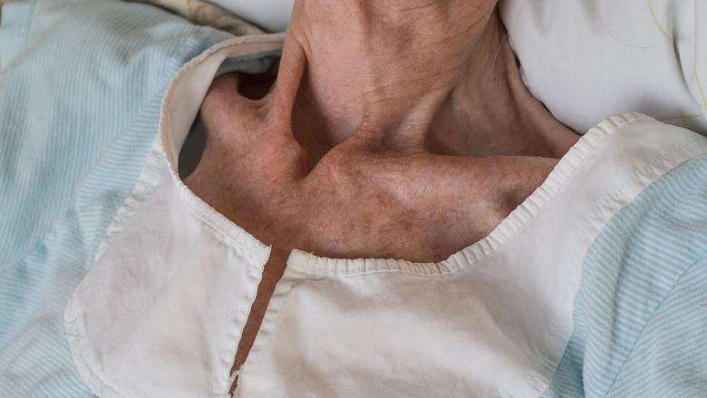 'Meer aandacht voor ondervoeding bij ouderen'