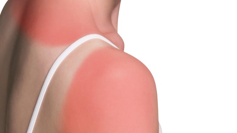 RIVM waarschuwt voor hoge zonkracht
