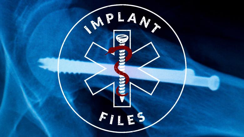 Implant Files: honderden WOB-verzoeken en weggelakte informatie