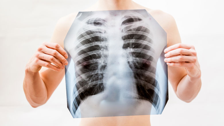 Aantal tuberculosepatiënten gestegen