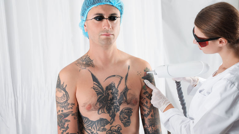 Kwart is ontevreden na weglaseren tatoeage