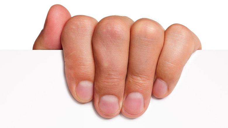 Losse velletjes rond de nagels