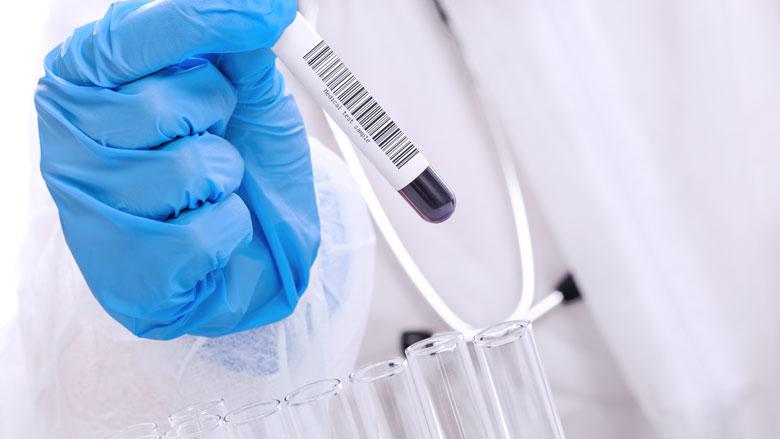 Trombose en het coronavirus: wat moet je weten over het onderzoek?